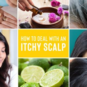 Itchy Scalp Treatments | Remedies For Dandruff, Lice and Scalp Acne